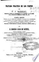 Tratado practico de los partos